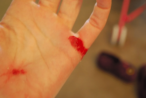 Bloddy hand